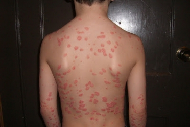 Can leprosy be treated by homeopathy? All You Need To Know